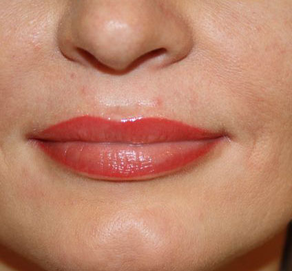 Permanent Make Up Berlin Lippe 2 Long Time Liner Cliff Unverwerth