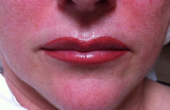 Permanent Make-up Lippe Cliff Unverwerth
